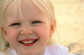 черные пятна на зубах у ребенка-причины что делать