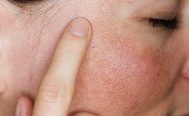 красные пятна на лице-причины как лечить