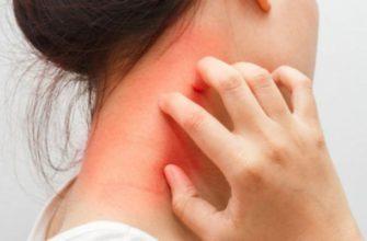 почему чешется шея-зуд на шее причины и лечение